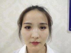 玻尿酸+瘦脸针黄