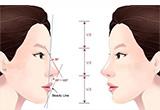 手术整形鼻部多少钱